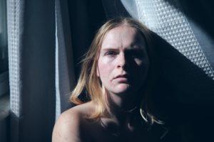 falsos mitos sobre el acné